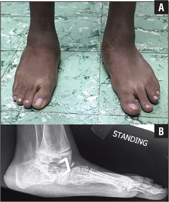 At 2-year follow-up, standing photograph of both feet (A) and lateral radiograph of the left foot (B). Note the correction of rocker-bottom deformities, external rotation of feet forefoot deformities, and restoration of a normal lateral pitch angle from −17° to 12°. Similar observations were made on the right side.
