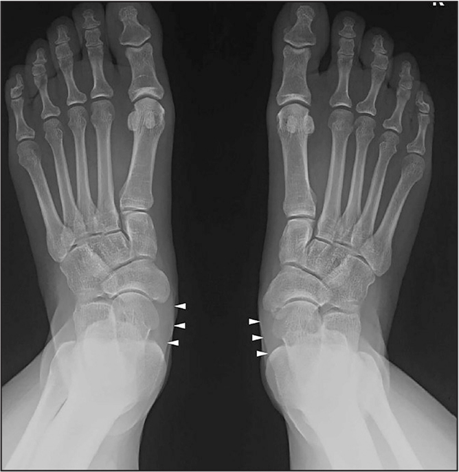 Normal posterior tibial tendon integrity on a plain weight-bearing anteroposterior foot radiograph. Posterior tibial tendon density is shown as a normal and symmetrical delineated soft tissue shadow (arrowheads) near the navicular insertion.
