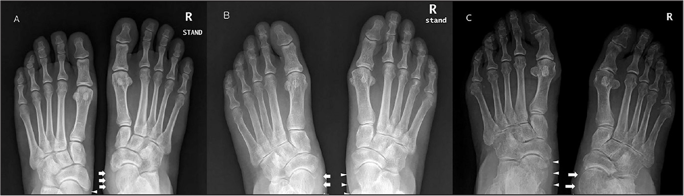 Abnormal posterior tibial tendon integrity on plain weight-bearing anteroposterior foot radiographs. A wavy pattern of soft tissue (arrows) medial to the talar head on the right foot corresponds to the posterior tibial tendon. Intact density of the posterior tibial tendon (arrowheads), which inserts on the navicular bone, is seen on the left foot (A). Compared with the well-delineated soft tissue shadow (arrowheads) of the right posterior tibial tendon, the left tendon shadow (arrows) is not well delineated (B). More severe pes planovalgus deformity of the right foot is seen, with a different thickness of soft tissue density just proximal to the navicular insertion. Compared with the left side (arrowheads), the right side shows thin, low-density soft tissue (arrows) along the posterior tibial tendon near the navicular insertion (C).