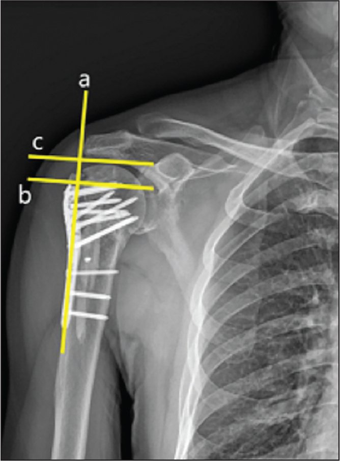 Anteroposterior radiograph of the shoulder at 6 months postoperatively showing the humeral head height defined as the distance between the uppermost head of the humerus and the uppermost edge of the plate. Two lines were drawn running perpendicular to the shaft of the plate (line a); one was placed at the top edge of the plate (line b), and the other was placed at the superior edge of the humeral head (line c). The distance between these two lines was measured and designated as the head height.