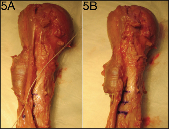 Photographs of soft tissue tenodesis. The first tendon pass through the long head of the biceps tendon with pectoralis major insertion 1 cm above the inferior border of the pectoralis major is seen (A). Finished soft tissue tenodesis with the excess tendon excised 1 cm proximal to fixation (B).