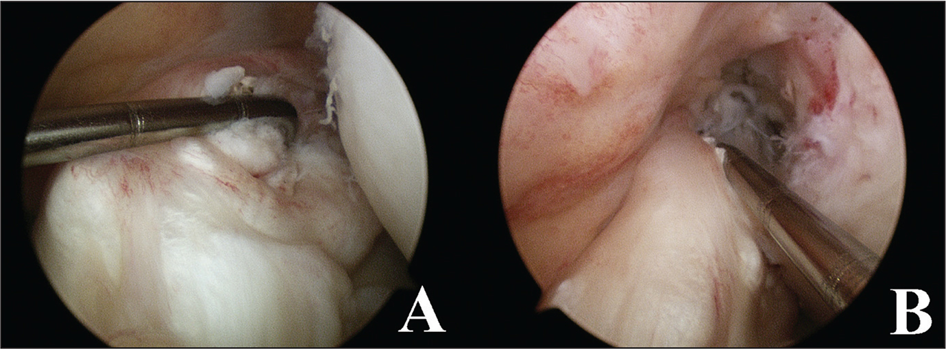 Arthroscopic view of the proximal ruptured anterior cruciate ligament with the remnant more than 7 mm (approximately 20% of the mean length of the anterior cruciate ligament) (A) and graft covered by tibial remnant after reconstruction (B).
