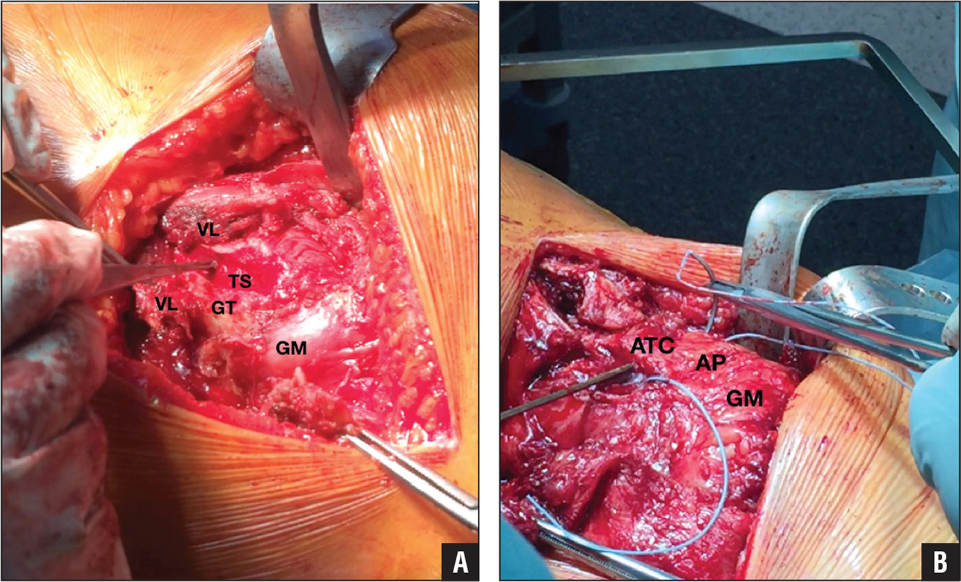 Posterocranial views of the left hip. Vastus lateralis (VL) T-shaped incision and trochanter sleeve (TS) created in the greater trochanter (GT). The posterior pillar of the gluteus medius (GM) is visible. The T-shaped split of the VL is important to suture the flap at the end of the procedure. This prevents retraction of the flap (A). Drilling transosseous sutures through the anterior trochanter cortex (ATC). It is important to put the tunnel deep enough to prevent pulling out of the Ti-Cron 5 (Covidien; Metronic, Minneapolis, Minnesota) suture. The suture starts through a tunnel in the ATC, captures the anterior pillar (AP) of the GM, and goes back through another tunnel in the ATC (B).