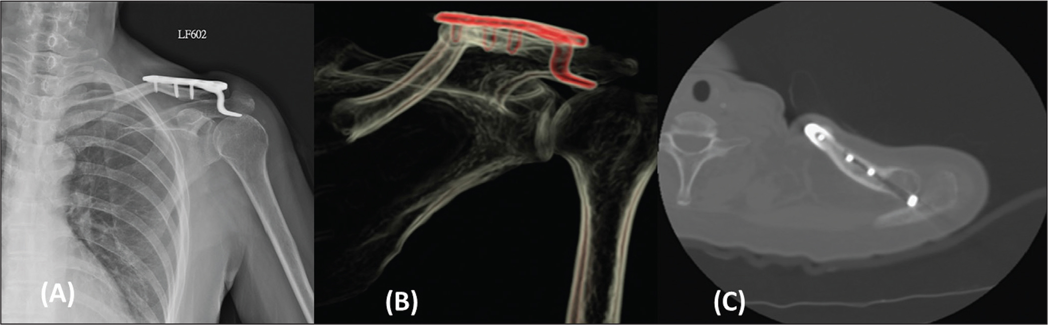 Case 4. Radiograph of internal rotation of the shoulder showing the distal clavicle fracture fixed with a hook plate with a peri-implant fracture over the most medial screw hole (A). Three-dimensional computed tomography scan revealed a fracture from the inferior screw hole to the upper layer of the cortex around the plate and bone junction (B). Axial view computed tomography scan revealed eccentric insertion of the medial screw (C).