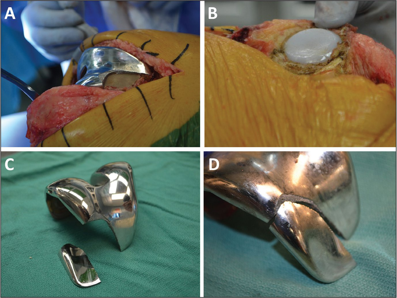 Anterolateral view of the fractured femoral anterior flange (A), patellar component with significant central lateral wear (B), and explanted femoral component with retrieved metal fragment (C, D).
