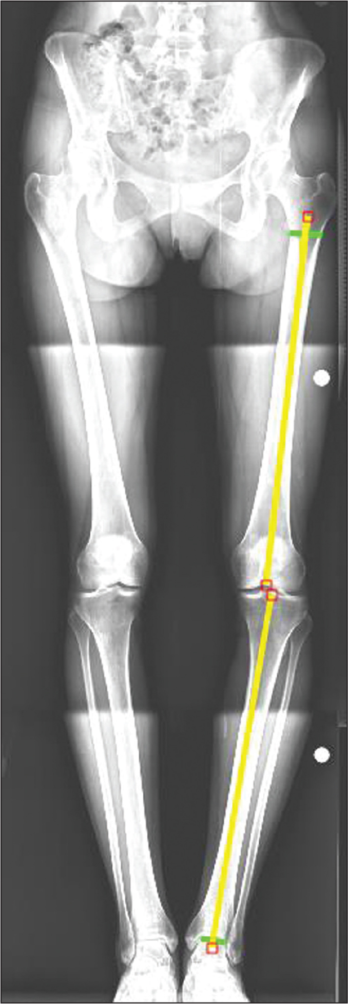 Preoperative anteroposterior orthoroentgenograph measurement of the lateral tibiofemoral angle, defined as the lateral angle between the anatomic axes of the tibia and femur. The lines on the leg on the right represent anatomic axes of the femur and tibia.