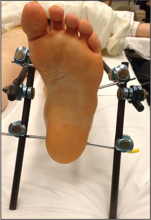 """The """"kickstand"""" modification. The posts extend posteriorly to suspend the foot off the resting surface. The lateral post is placed more posteriorly to counter the natural external rotation of the leg."""