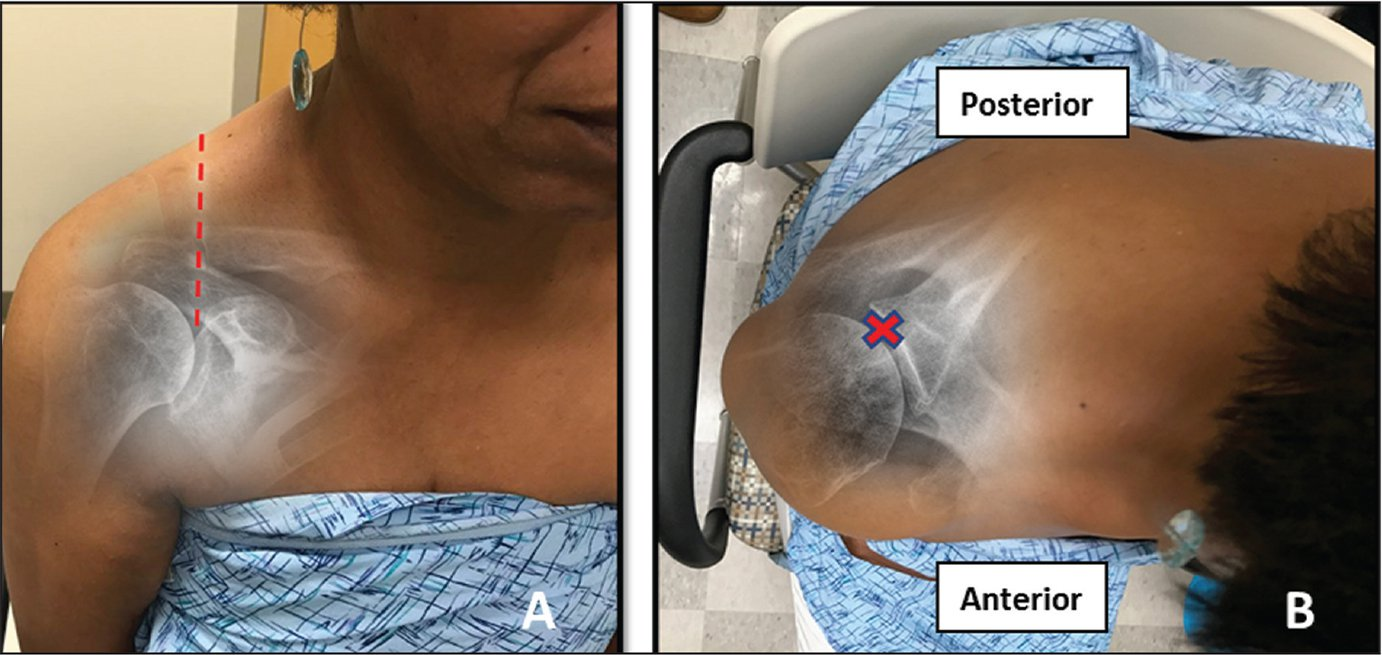 """Front view (A) and top-down view (B) clinical photographs of a right shoulder with superimposed radiographs demonstrating the Neviaser (superomedial) portal indicated by the """"X."""" The portal is located in the """"soft spot"""" approximately 1 cm posterior to the acromioclavicular joint, aimed slightly lateral and anterior."""