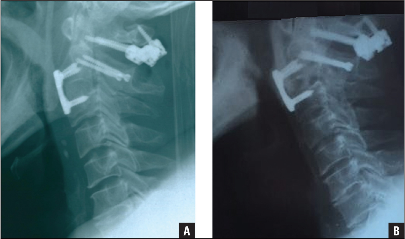 The 7-day postoperative lateral radiograph showing that the C2–3 spondylolisthesis was reduced, the axial vertebral body and pedicle fracture line were closed, and the internal fixation position was ideal (A). The 2-year postoperative lateral radiograph showing that the C2–3 vertebral body was fused with a bone graft, the cervical curvature was ideal, and the internal fixation position was good (B).