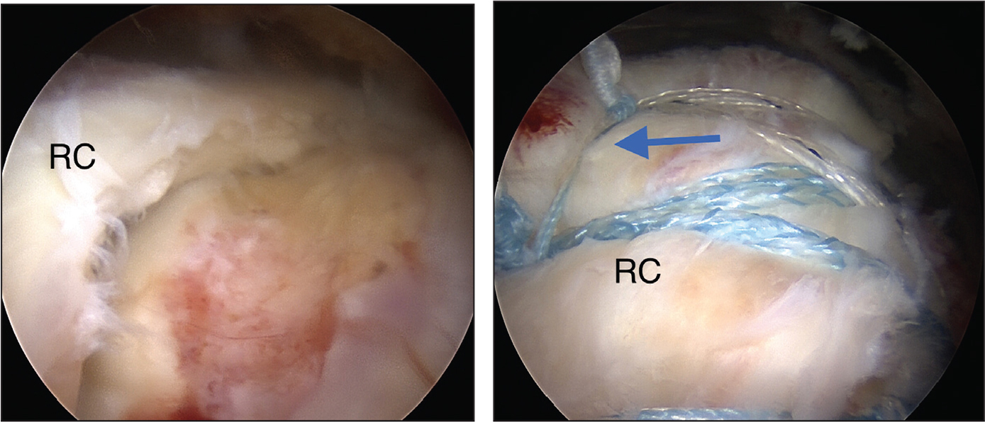Preoperative arthroscopic posterior subacromial view of the right shoulder demonstrating a full-thickness supraspinatus tendon tear (A) and postoperative view showing a speed tape double-pulley repair (B). The arrow points to the medial mattress suture that compresses along the articular surface to seal the joint. Abbreviation: RC, rotator cuff.