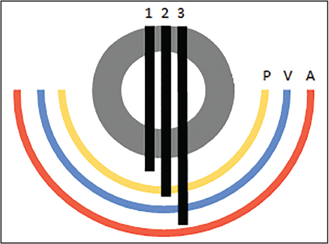 A pictorial representation of drill bit plunging with respect to the nearby neurovascular structures. The black lines (1–3) represent the minimum, mean, and maximum plunge depths, respectively, observed in this study. The arcs represent the mean distance to the neurovascular structures (yellow [P], brachial plexus; blue [V], subclavian vein; and red [A], subclavian artery).