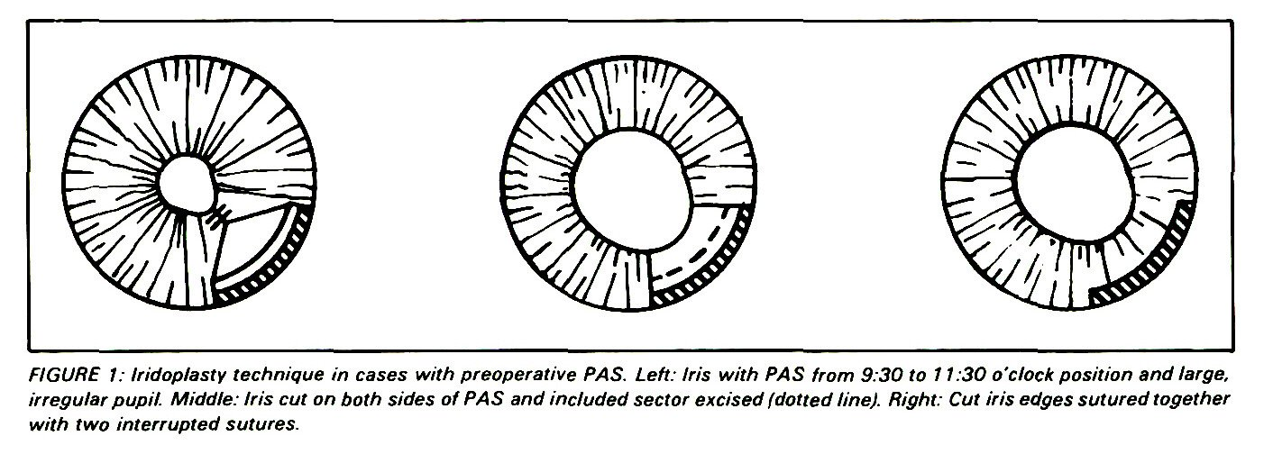 FIGURE 1: Iridoplasty technique in cases with preoperative PAS. Left: Iris with PAS from 9:30 to 1 1:30 o'clock position and large, irregular pupil. Middle: Iris cut on both sides of PAS and included sector excised (dotted line). Right: Cut iris edges sutured together with two interrupted sutures.