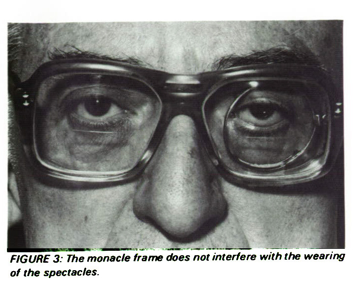 The Use of a Monacle for Ptosis