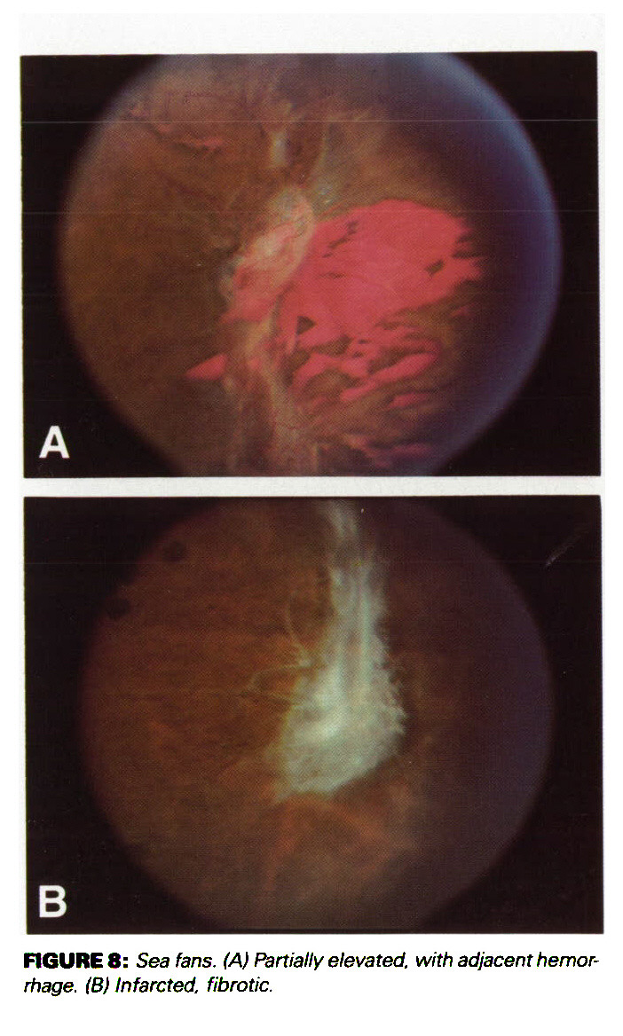 Diagnosis And Management Of Ocular Complications Sickle Hypertensive Retinopathy Silver Wiring Manifestations Figure 8 Sea Fans A Partially Elevated With Adjacem Hemorrhage