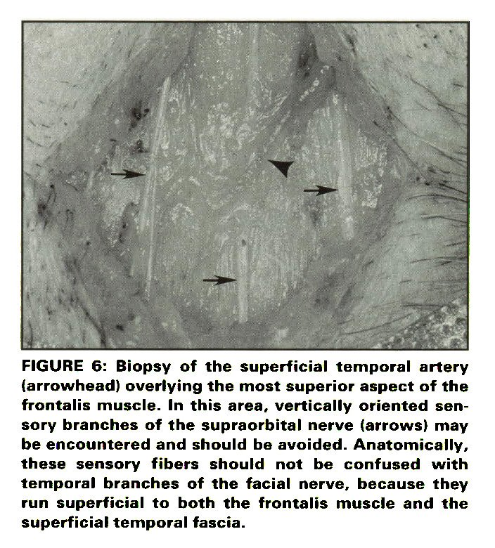 Temporal Artery Biopsy Technique A Clinico Anatomical Approach