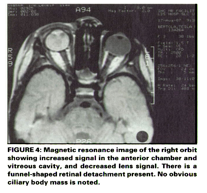 FIGURE 4: Magnetic resonance image of the right orbit showing increased signal in the anterior chamber and vitreous cavity, and decreased lens signal. There is a funnel-shaped retinal detachment present. No obvious ciliary body mass is noted.