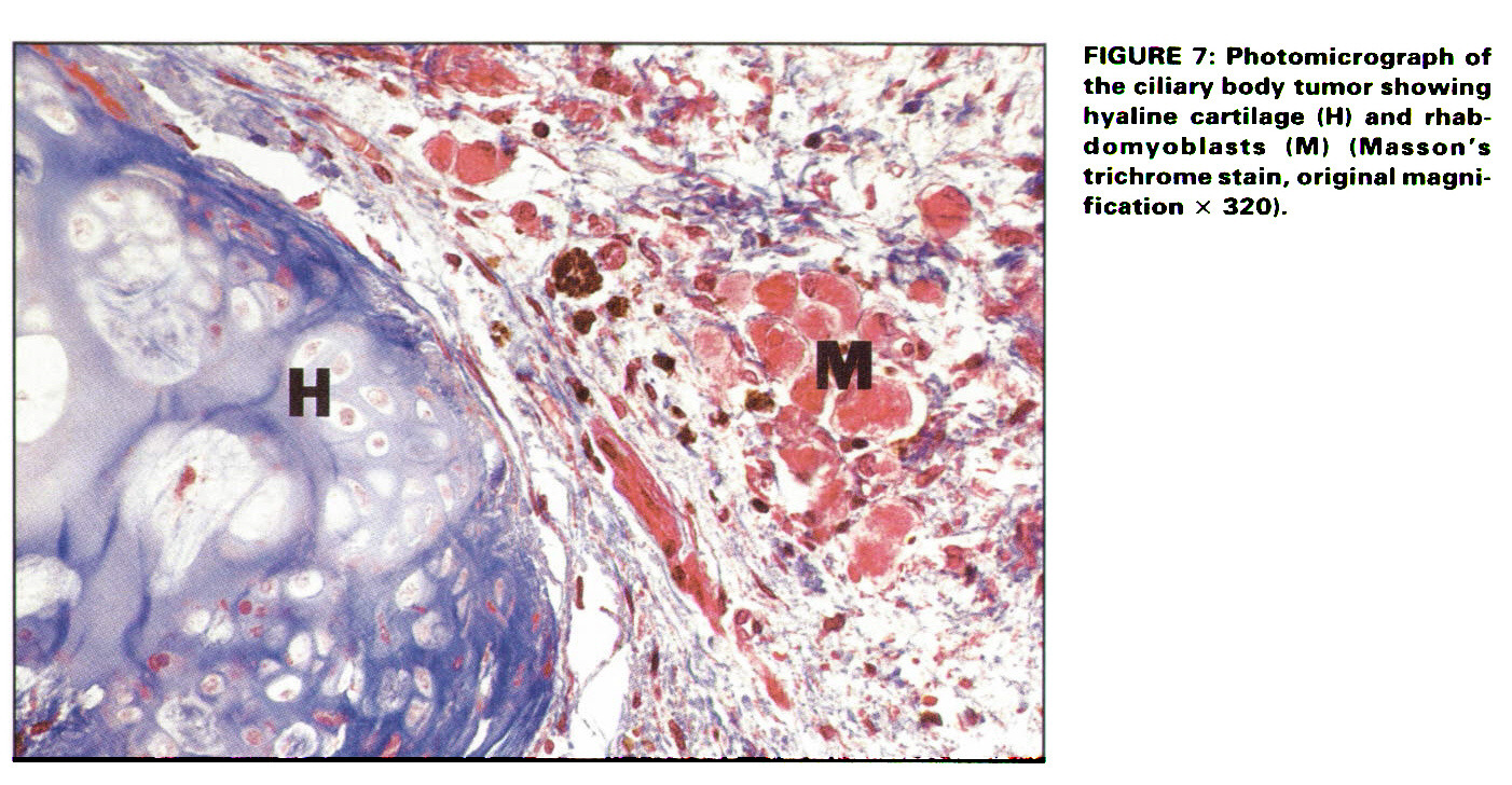 FIGURE 7: Photomicrograph of the ciliary body tumor showing hyaline cartilage (H) and rhabdomyoblasts (M) (Masson's trichrome stain, original magnification x 320).