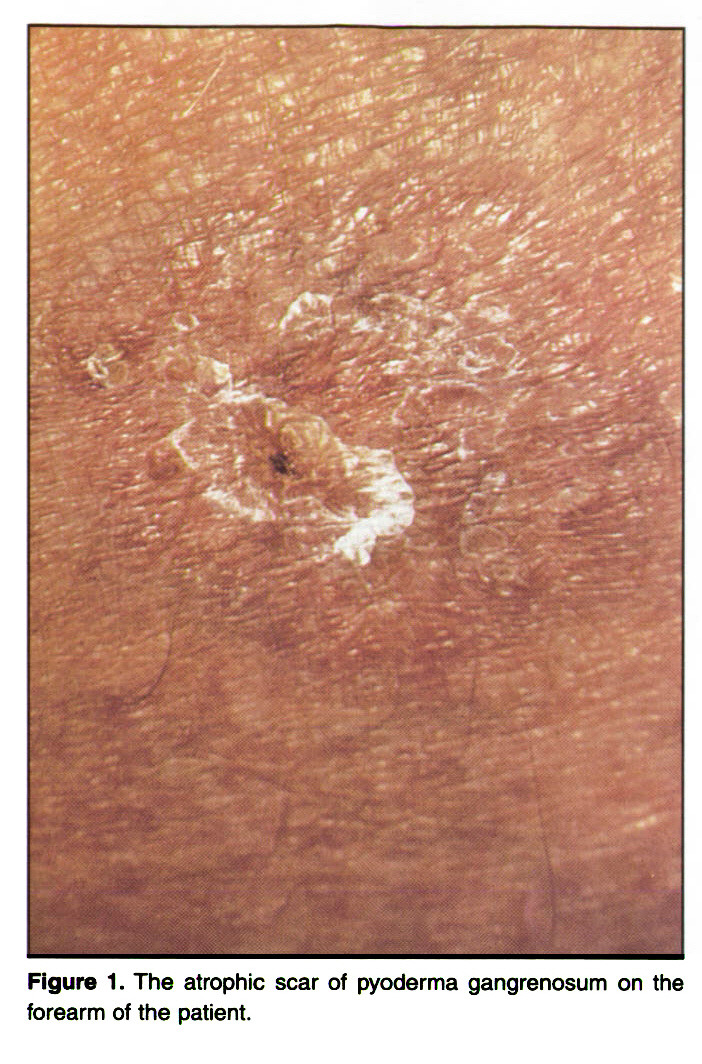 Figure 1. The atrophic scar of pyoderma gangrenosum on the forearm of the patient.