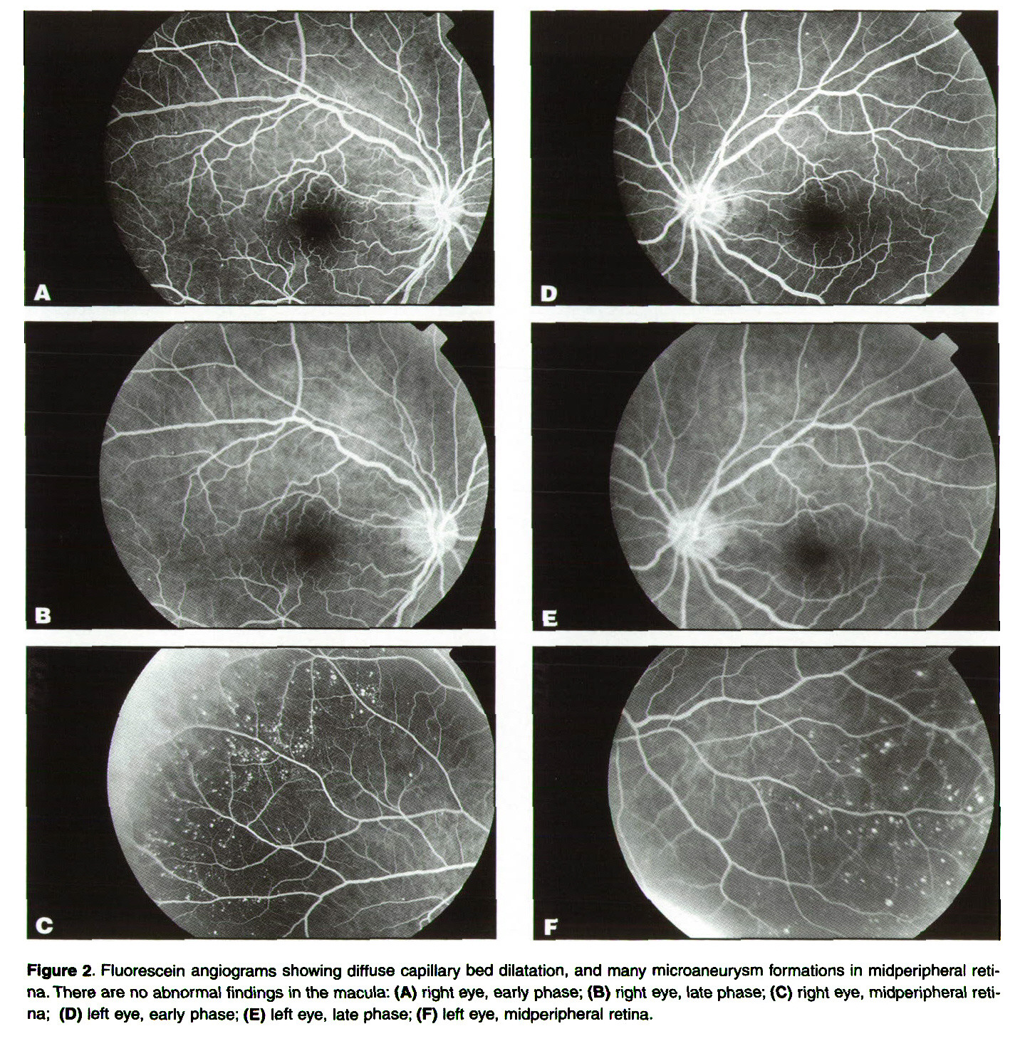 Figure 2. Fluorescein angiograms showing diffuse capillary bed dilatation, and many microaneurysm formations in midperipheral retina. There are no abnormal findings in the macula: (A) right eye, early phase; (B) right eye, late phase; (C) right eye, midperipheral retina; (D) left eye, early phase; (E) left eye, late phase; (F) left eye, midperipheral retina.