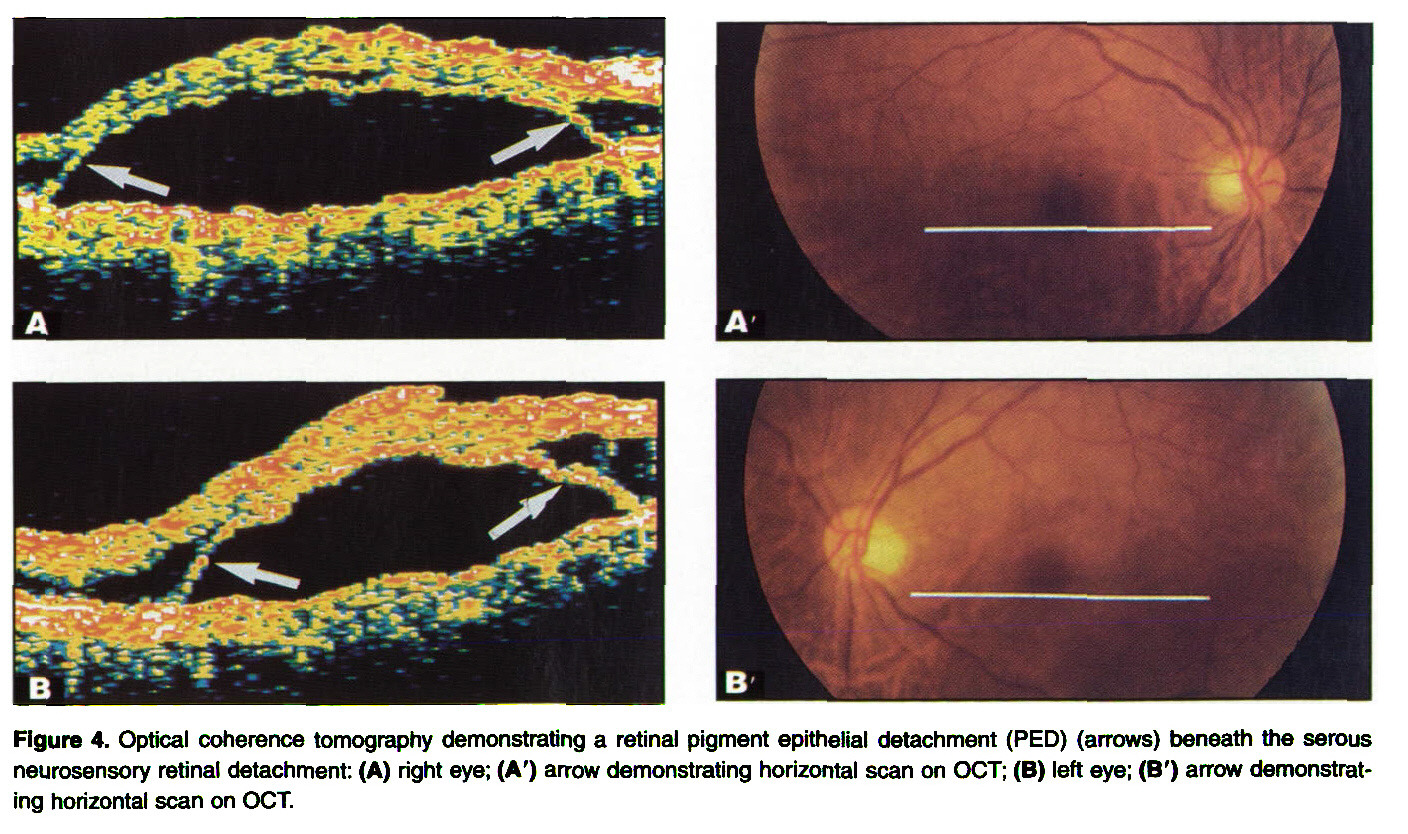 Figure 4. Optical coherence tomography demonstrating a retinal pigment epithelial detachment (PED) (arrows) beneath the serous neurosensory retinal detachment: (A) right eye; (A') arrow demonstrating horizontal scan on OCT; (B) left eye; (B') arrow demonstrating horizontal scan on OCT.