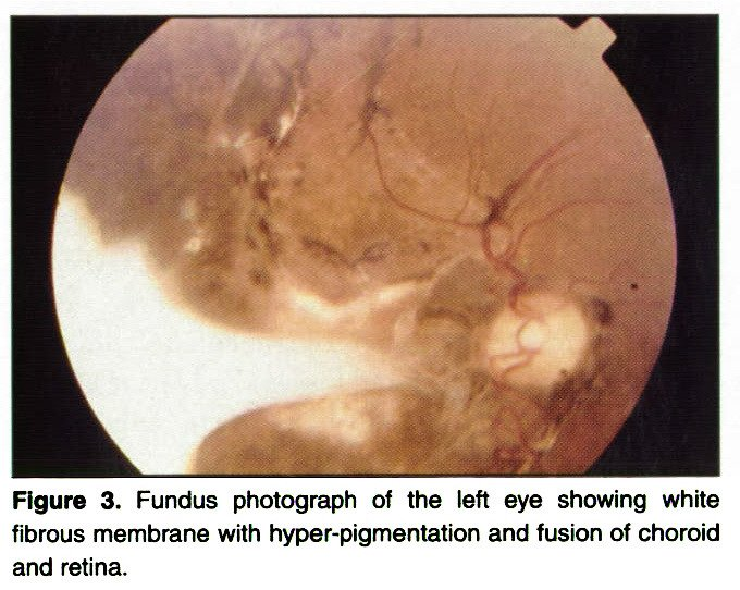 Figure 3 Fundus Photograph Of The Left Eye Showing White Fibrous Membrane With Hyper