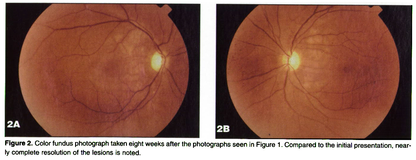 Figure 2. Color fundus photograph taken eight weeks after the photographs seen in Figure 1 . Compared to the initial presentation, nearly complete resolution of the lesions is noted.
