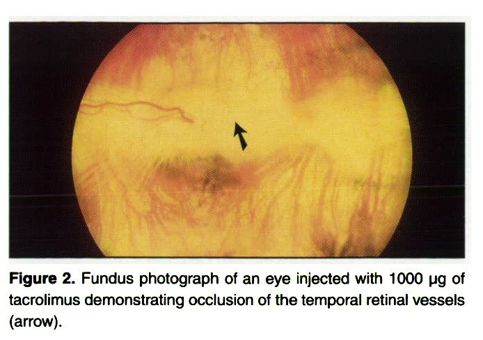 Figure 2. Fundus photograph of an eye injected with 1000 pg of tacrolimus demonstrating occlusion of the temporal retinal vessels (arrow).