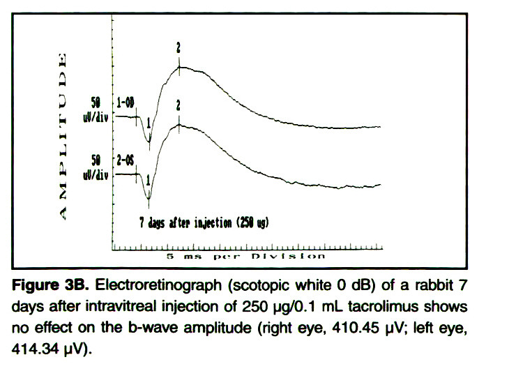 Figure 3B. Electroretinograph (scotopic white O dB) of a rabbit 7 days after intravitreal injection of 250 µg/0.1 mL tacrofimus shows no effect on the b-wave amplitude (right eye, 410.45 µV teft eye, 41 4.34 µV).
