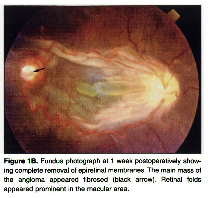 Figure 1 B. Fundus photograph at 1 week postoperative!/ showing complete removal of epiretinal membranes. The main mass of the angioma appeared fibrosed (black arrow). Retinal folds appeared prominent in the macular area.