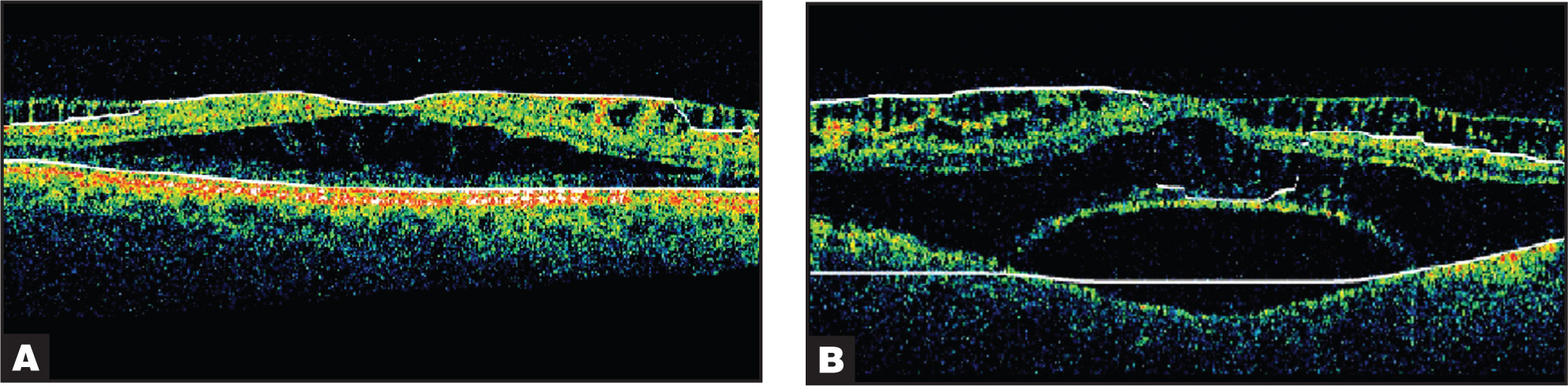 Optical Coherence Tomography of the (A) Right Eye Showing Almost No Difference from Previous Testing and the (B) Left Eye Showing the Formation of Subneurosensory Retinal Bulla-Formation and Maintenance of Previous Optical Coherence Tomography Changes Above Bulla. There Is No Evidence of Macular Hole Formation.