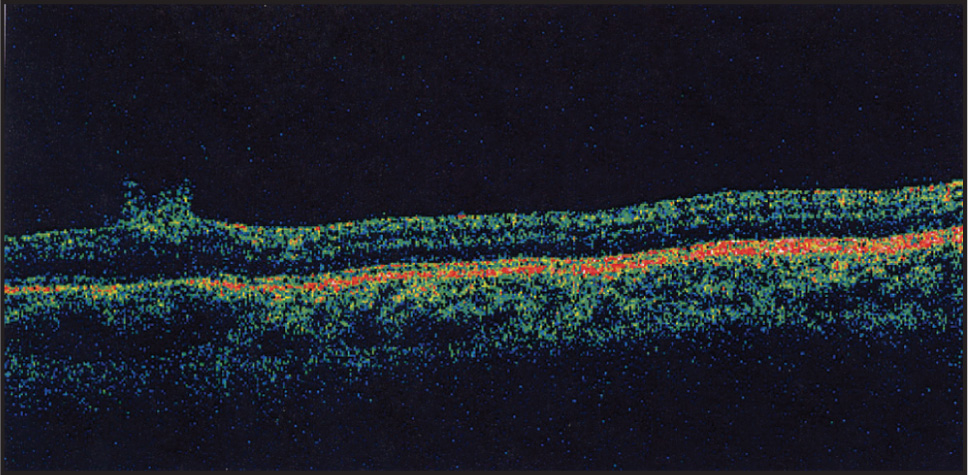 Optical Coherence Tomography of the Left Eye of Case 3 Demonstrating a Thick Epiretinal Membrane with Curled Edges Similar to Cases 1 and 2.