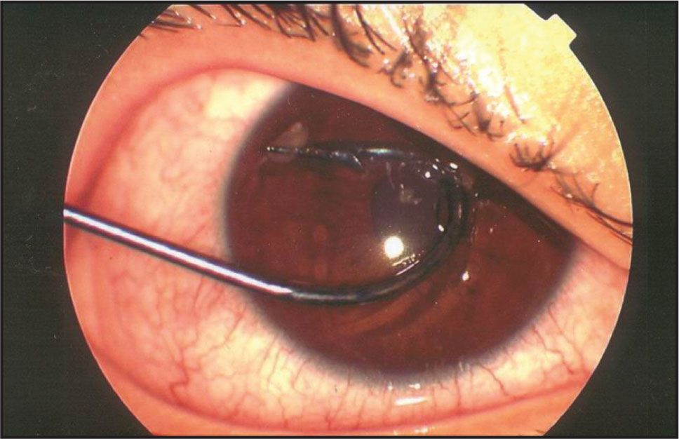 perforating corneal injury with a fish hook