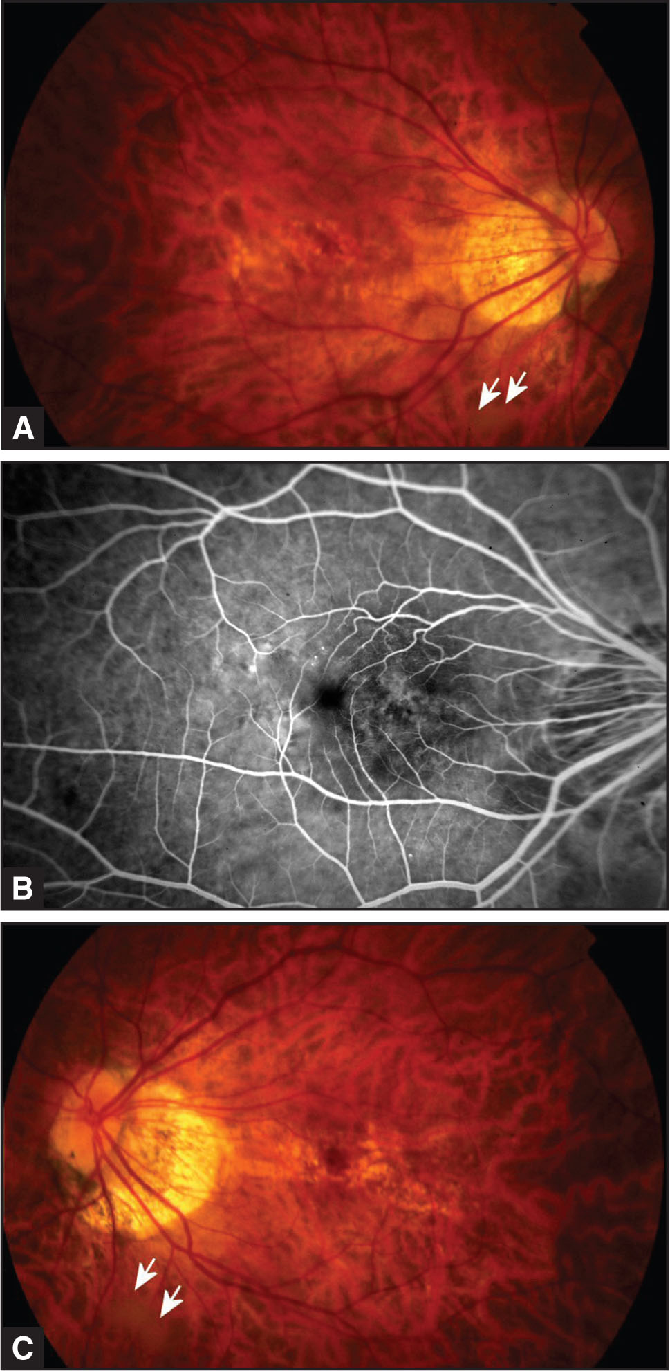 (A) Color Fundus Photography of the Right Eye 5 Years Before Surgery Showed Peripapillary Atrophy with Atrophic RPE Changes and What Appears to be a Weiss Ring Indicating Posterior Vitreous Detachment Inferior to the Optic Disk (arrows). (B) Fluorescein Angiography Showed Window Defects Without Leakage (arrows). (C) the Color Photograph of the Left Eye Has Similar Atrophic Macular RPE Changes and Apparent Weiss Ring (arrows).