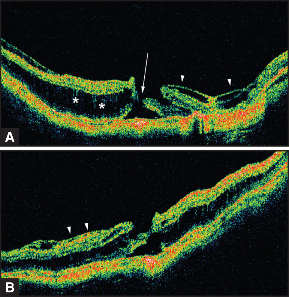 Stratus OCT 2 Months Preoperatively Shows a Similar Degree of Preretinal Tissue (arrowheads) and Deep Retinal Schisis-Like Change (asterisks), but also (A) a Possible FTMH in the Right Eye, and (B) a Mild, Preretinal Tissue Component (arrowheads) in the Left Eye.