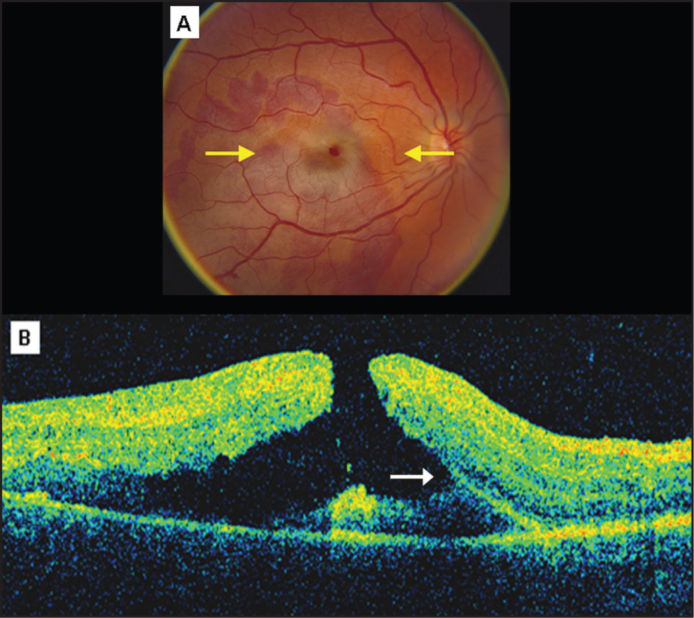 A Color Fundus Photograph Of The Right Eye 3 Days After Blunt Trauma Showing