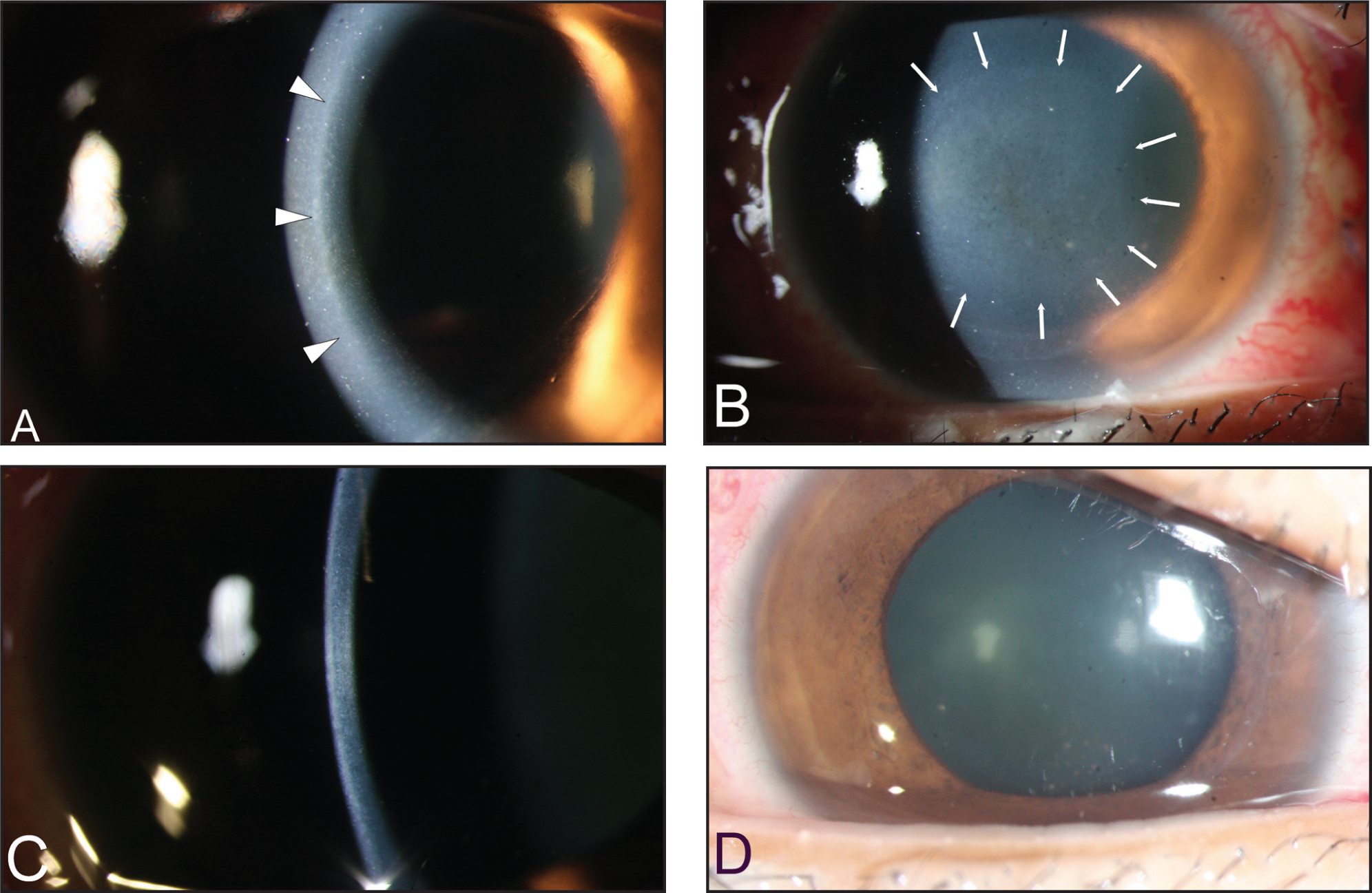 (A) Pressure-Induced Interface Keratopathy and Interface Infiltration (arrowhead). (B) Margins of the Pressure-Induced Interface Keratopathy (arrows). (C and D) the Interface Infiltration Has Resolved After Control of the Intraocular Pressure.