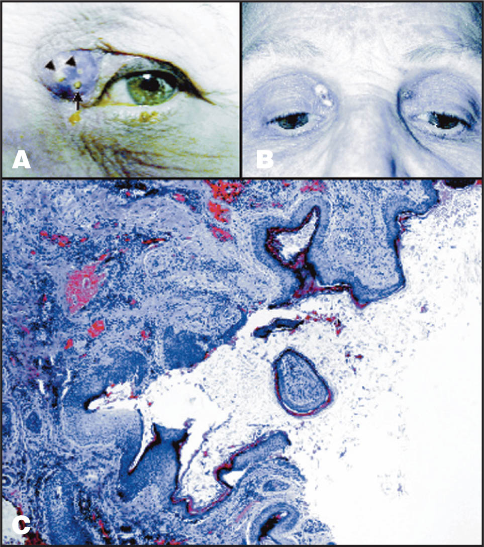 (A) At Presentation, the Nasal Aspect of the Left Upper Eyelid Is Erythematous with a Fluctuant Mass Containing an Anterior Pore Plugged with Keratin (arrow). Arrowheads Indicate Two Areas of Purulent Material Visible Through Thinned Skin. (B) Two Weeks Later, at the Time of Excision, the Left Upper Eyelid Abscess Has Shrunk and the Uninflamed Right Upper Eyelid Lesions Appear Unchanged. (C) Histopathology Is Consistent with an Inflamed Epidermal Inclusion Cyst. A Cystic Cavity Containing Keratin Debris Is Lined by Squamous Epithelium. The Cyst Wall Contains Chronic Inflammation (hematoxylin–Eosin, Original Magnification ×4).