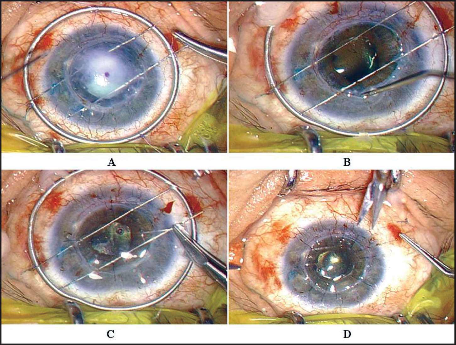 "The ""double-Needle"" Technique for Triple Surgery. (A) Two Needles Were Inserted into the Recipient Bed. (B) After Removal of the Recipient Cornea, the Lens Was Removed by Phacoemulsification and an Intraocular Lens Was Implanted in the Bag Without Difficulty. (C) Cardinal Suturing Was Performed. (D) The Needles Were Removed from the Recipient Bed and the Donor Cornea Was Secured with 10-0 Nylon."