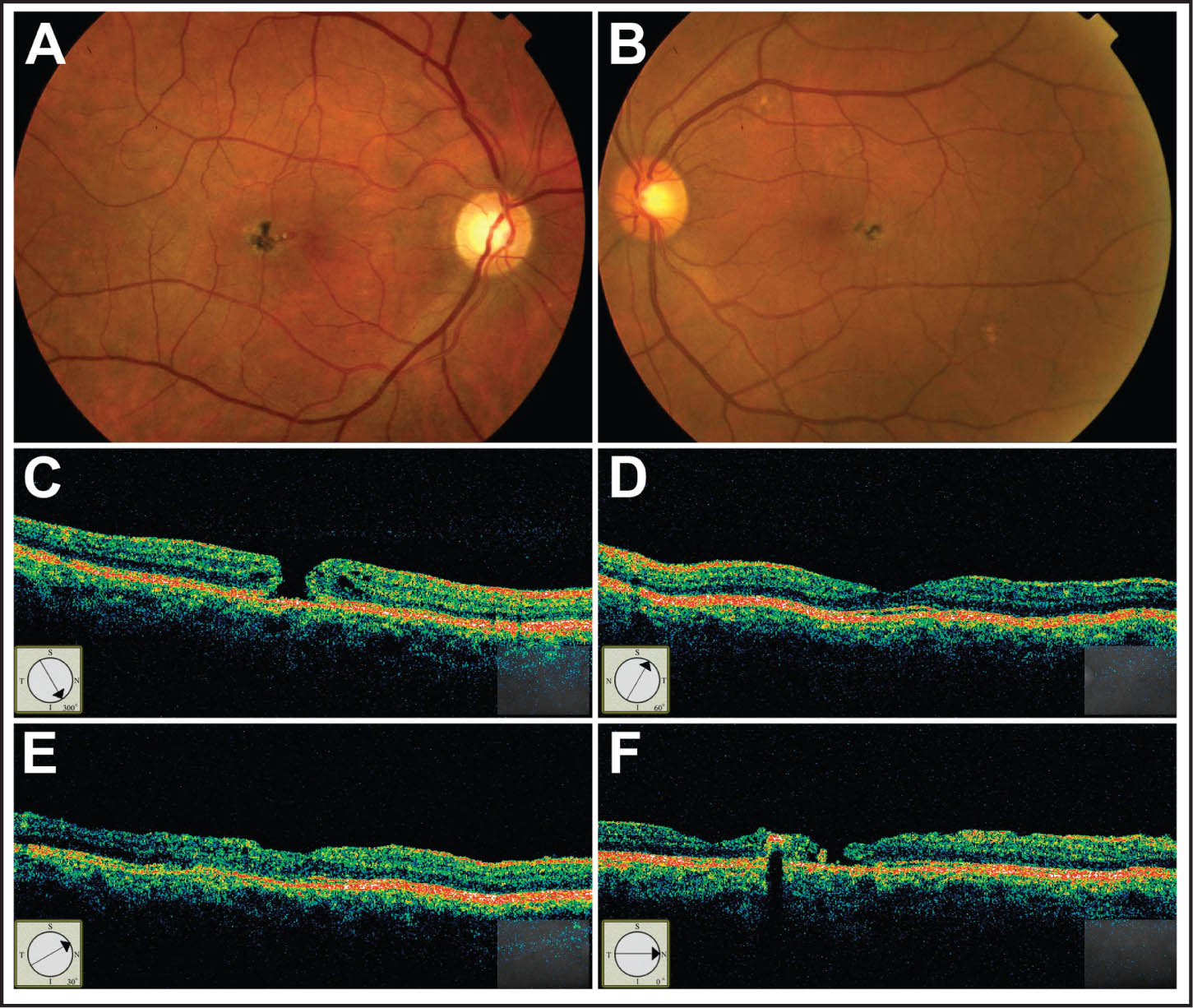 A 67-Year-Old Man with Full-Thickness Macular Hole and IMT Type 2 Presented with a Recent Decrease of Vision in His Right Eye. (A and B) Fundus Photograph Shows Grayish Opacification Around the Fovea with Pigment Clumping Temporal to the Fovea. (C) Stratus OCT III (Carl Zeiss Meditec, Dublin, CA) Showed a Small Full-Thickness Macular Hole in the Right Eye; Visual Acuity Was 20/70. (D) Stratus OCT Shows Normal Foveal Appearance in the Left Eye. (E) Stratus OCT Radial Scan (representative of 5/6 Radial Scans) Taken 13 Months After Surgery Shows Restored Retinal Anatomy. The Inner-Outer Segment Junction of Photoreceptors Layer Is Interrupted Centrally Indicating Photoreceptor Loss. (F) Horizontal Radial Scan of Stratus OCT Taken 13 Months After Surgery Demonstrates a Prominent Intraretinal Pigment Clump with Shadowing and a Small Full-Thickness Retinal Discontinuity Defect.