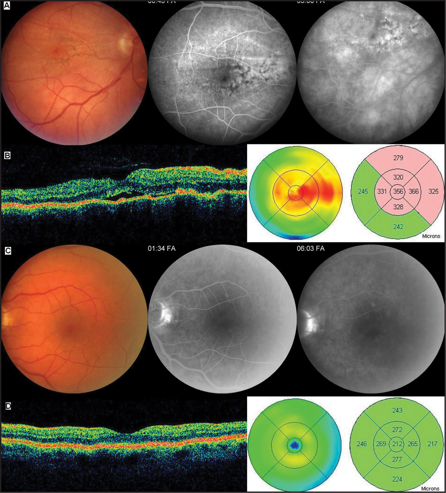 (A) Right Eye at Initial Presentation. Fundus Photograph Illustrates Deep Orange-Yellow Protruding Lesions at the Inferior Temporal Arcade and Multiple Large Retinal Pigment Epithelium (RPE) Clumping Around the Fovea and Chorioretinal Folds Extending Periphery Starting from the Optic Disc (left). RPE Clumping and Chorioretinal Folds Were Noticed More Easily at the Early Phase of Fluorescein Angiography (FA) with Pinpoint Hyperfluorescences Surrounding the Fovea (middle). In the Late Phase of FA, Oozing of Fluorescein Was Noticed at the Inferior Temporal Arcade, Which Corresponds to the Lesion Site (right). (B) Optical Coherence Tomography (OCT) and Thickness Map of the Right Eye at Initial Presentation. On the OCT, Localized Subretinal Fluid and Retinal Thickening Surrounding the Fovea Were Noticed. RPE Contour Had a Mild Undulating Course with Localized RPE Detachment. Foveal Contour Was Preserved. (C) Left Eye at Initial Presentation. Fundus Photograph and Mid and Late Phases of FA Revealed Normal Macula with Normal Vasculature. (D) OCT and Thickness Map of the Left Eye at Initial Presentation. There Were No Abnormalities in the Left Eye.