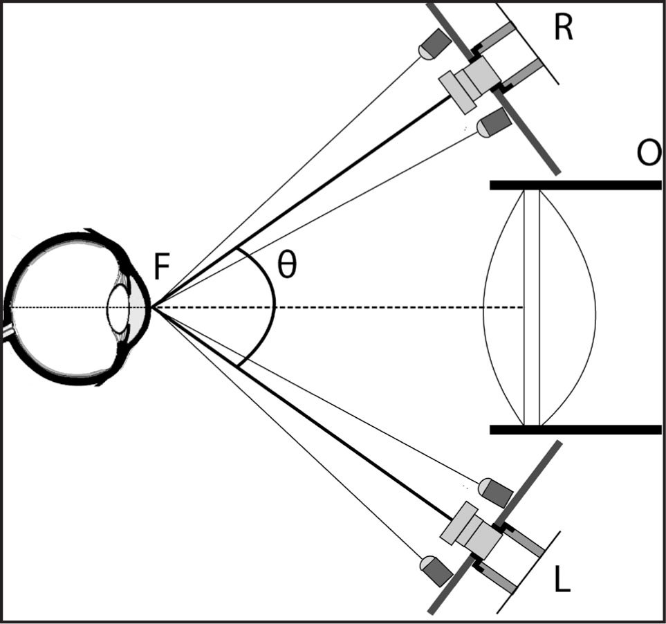 The Schematic Drawing of the Tracking System. The Two Cameras (L and R) Are Coupled to the Objective Lens (O). The Three Optical Axes Intercept at Point F Located at the Nominal Working Distance.