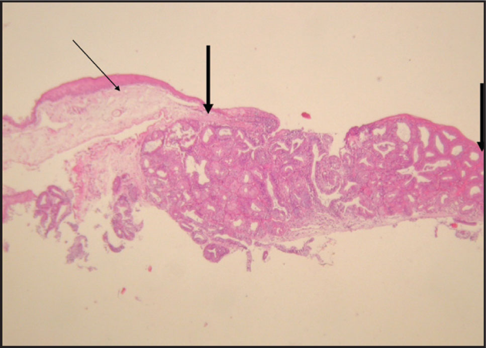 Histopathologic Examination Showed the Presence of Ectopic Lacrimal Gland Tissue (the Portion Between the Thick Arrows). The Thin Arrow Shows the Normal Conjunctival Epithelium (hematoxylin–Eosin, Original Magnification ×40).