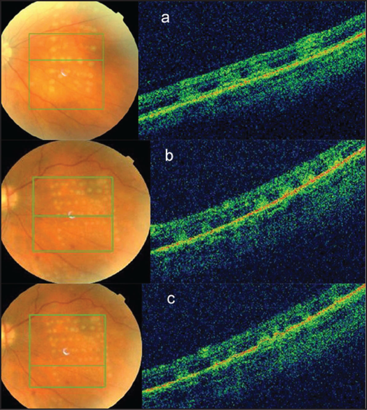 "(A) Clinically Visible ""threshold"" Laser Burns Are Clearly Seen on the Spectral Domain Optical Coherence Tomography (SD-OCT) Scan as Homogenous Diffuse Increase in Retinal Reflectivity Extending Across the Full Thickness of Retina. (B) Subthreshold Laser Burns that Are Less Distinctly Visible Clinically Are Detected on the SD-OCT Scan as Focal Areas of Increased Reflectivity. (C) Further Reduction in the Duration of Laser Exposure to 0.03 Second Creates Burns that Are not Visible Clinically but Are Detectable on the SD-OCT Scan as Focal Areas of Increased Reflectivity Confined to the Outer Retinal Layers."
