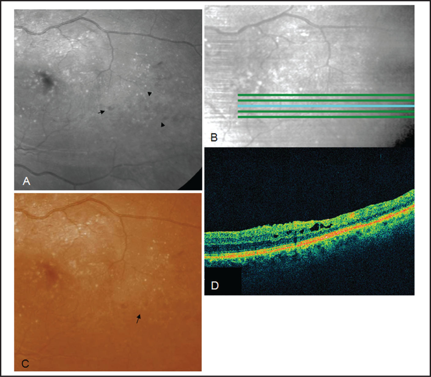 Postoperative Findings in Case 1. (A) Blue Reflectance Fundus Photograph Showing the Location of Alveolar Imprints Coincides Exactly with the Area of Alveolar Retinal Microholes (black Arrows). (B) The Corresponding Virtual Optical Coherence Tomography (OCT) Fundus Photograph Acquired with Spectral Domain OCT and Correlated with Blue Reflectance Fundus Photograph. (C) Color Fundus Photograph Showing Tiny Alveolar Imprints Have Replaced the Lamellar Holes. (D) Scan Images with Spectral Domain OCT Showing Hyporeflective Cystic Spaces.
