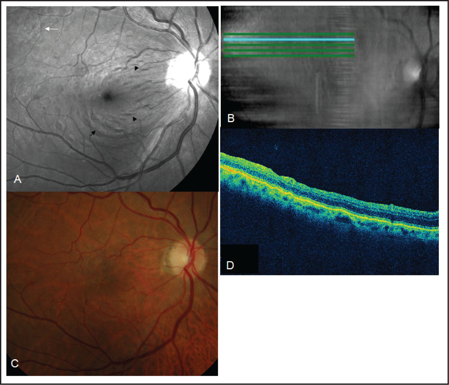 Postoperative Findings in Case 2. (A) Blue Reflectance Fundus Photograph Showing Areas of Alveolar Imprints Remaining (white Arrow). Note the Dissociated Optic Nerve Fiber Layer Appearance of the Fundus (black Arrows) that Consists of Numerous Arcuate Striae Within the Posterior Pole in the Direction of the Optic Nerve Fibers and Slightly Darker than the Surrounding Retina. (B) The Corresponding Virtual Optical Coherence Tomography (OCT) Fundus Picture Acquired with Spectral Domain OCT and Correlated with Blue Reflectance Fundus Photograph. (C) Color Fundus Photograph Showing the Lamellar Microholes Are No Longer Visible After Surgery. (D) Scan Images with Spectral Domain OCT Revealed Normal Retinal Contour.