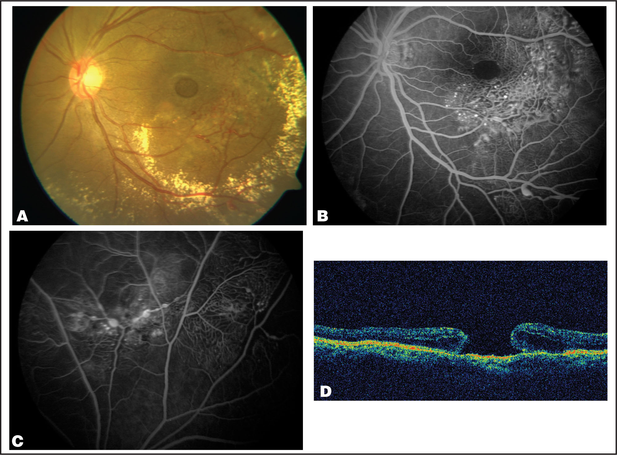 (A) The Left Eye Shows Circinate Intraretinal Exudation Around the Macula with a Full-Thickness Macular Hole. Telangiectatic Vessels Are Visible Inferiorly and Temporally with Pigmentary Changes. (B) Fluorescein Angiogram Demonstrating Anomalous Dilated Vessels with Saccular Dilatations. Hypofluorescence Demarcates the Area of the Macular Hole. (C) Fluorescein Angiogram Showing Telangiectatic Retinal Vessels with Saccular Dilatations in the Superior Periphery. (D) Vertical Optical Coherence Tomography Scan Through the Center of the Macular Hole Showing Full-Thickness Macular Hole.