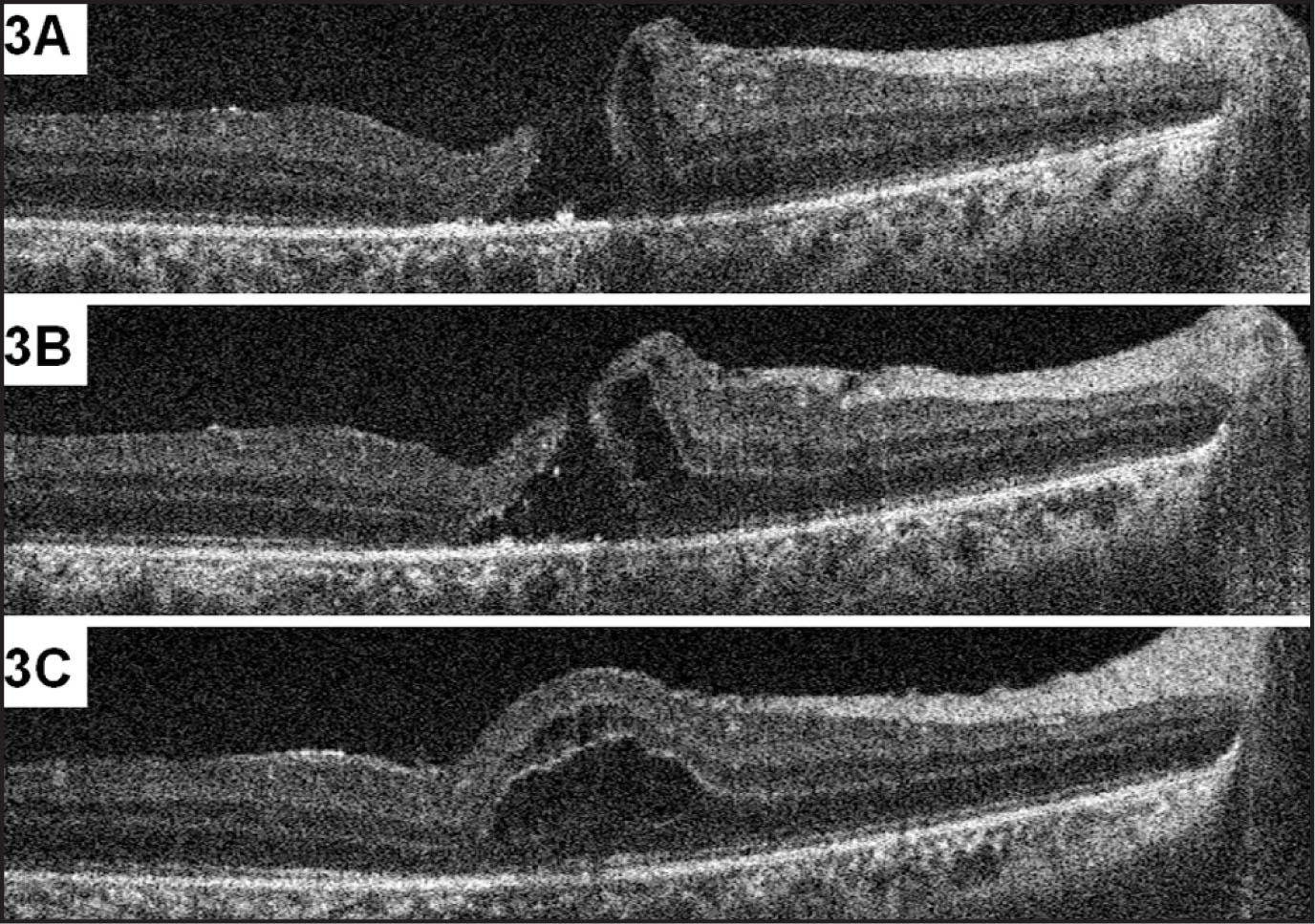 Intraoperative, Pre-Vitrectomy, and Pre-Internal Limiting Membrane Peeling, Spectral-Domain Optical Coherence Tomography (SD-OCT) (Bioptigen, Research Triangle Park, NC) Analysis of the Left Eye. (A) SD-OCT Through the Fovea Shows the Full-Thickness Macular Hole. (B) SD-OCT Just Superior to the Fovea Shows Subretinal and Intraretinal Fluid. (C) SD-OCT Just Superior to (B) Shows Intraretinal Cystic Fluid.