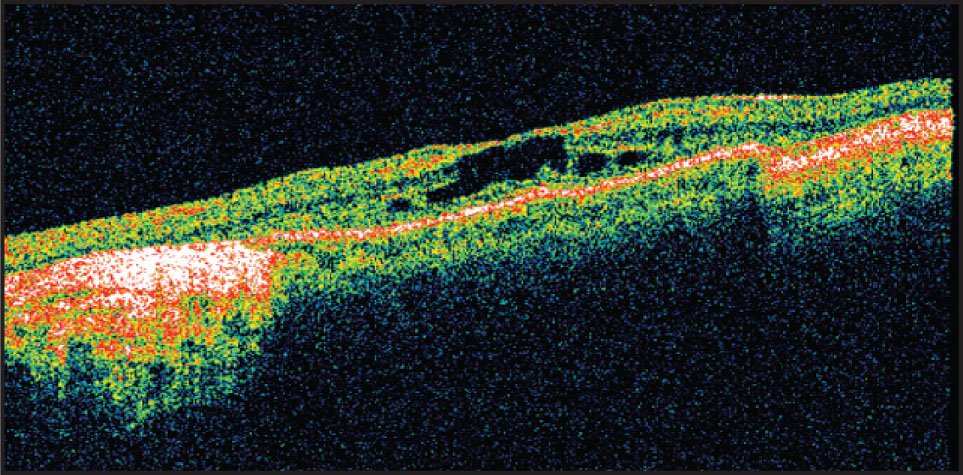 Patient with Retinitis Pigmentosa and Cystoid Macular Edema at the Fovea. The Retinal Thickness at the Foveola Is 255 μm. Note the Large Hyporeflective Cystic Spaces at the Foveola.