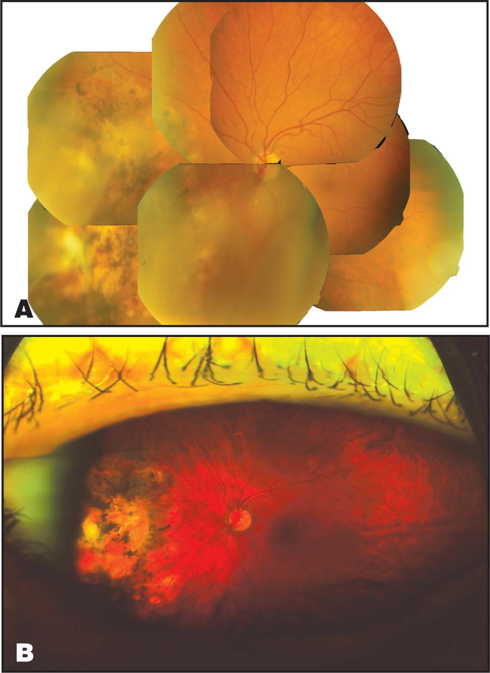 (A) Conventional Fundus Photography with Montage. (B) Optomap (Optos PLC, Dunfermline, Scotland) Ultra-Wide–Field Imaging of the Same Patient.