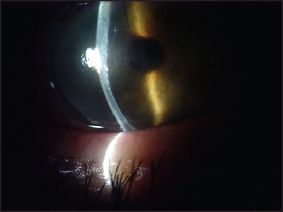 Three Days after Surgery, a Slit Lamp View of the Right Eye shows an Extensive Corneal Edema and the Detachment of the Descemet's Membrane.